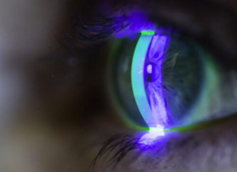 Traumatisme oculaire
